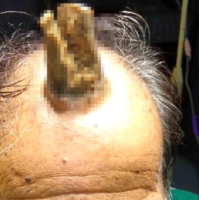 Başını çarptıktan 5 yıl sonra 'boynuz' çıktı