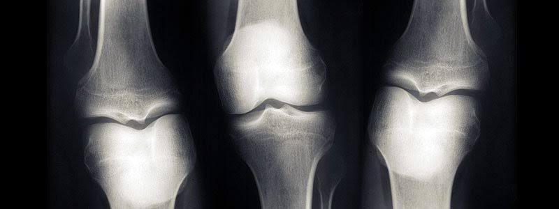 kemik röntgen