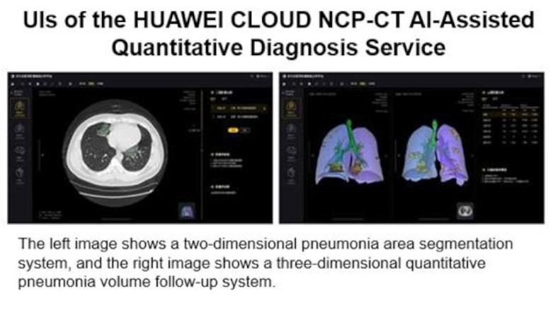 Huawei'den Yapay Zeka Destekli Koronavirüs Tanı Hizmeti ile ilgili görsel sonucu