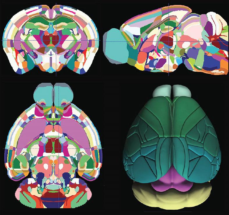 beyin 3 boyutlu harita
