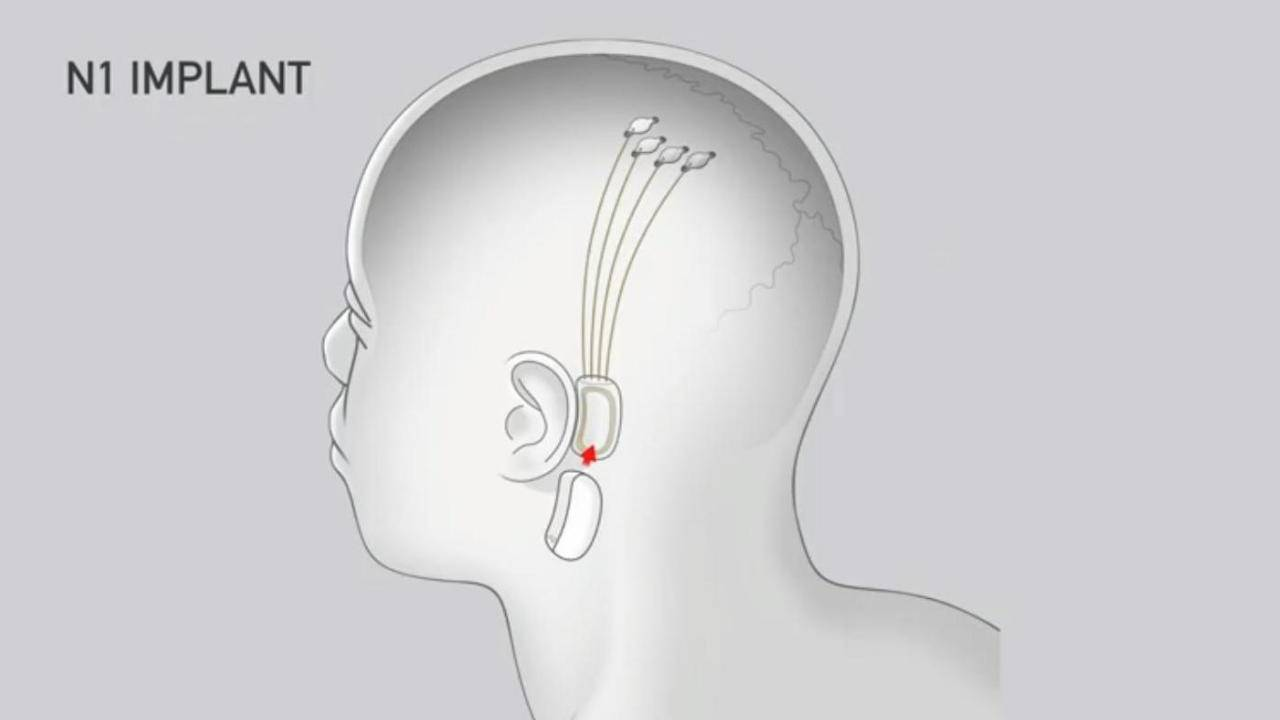 sinirsel bağlantı