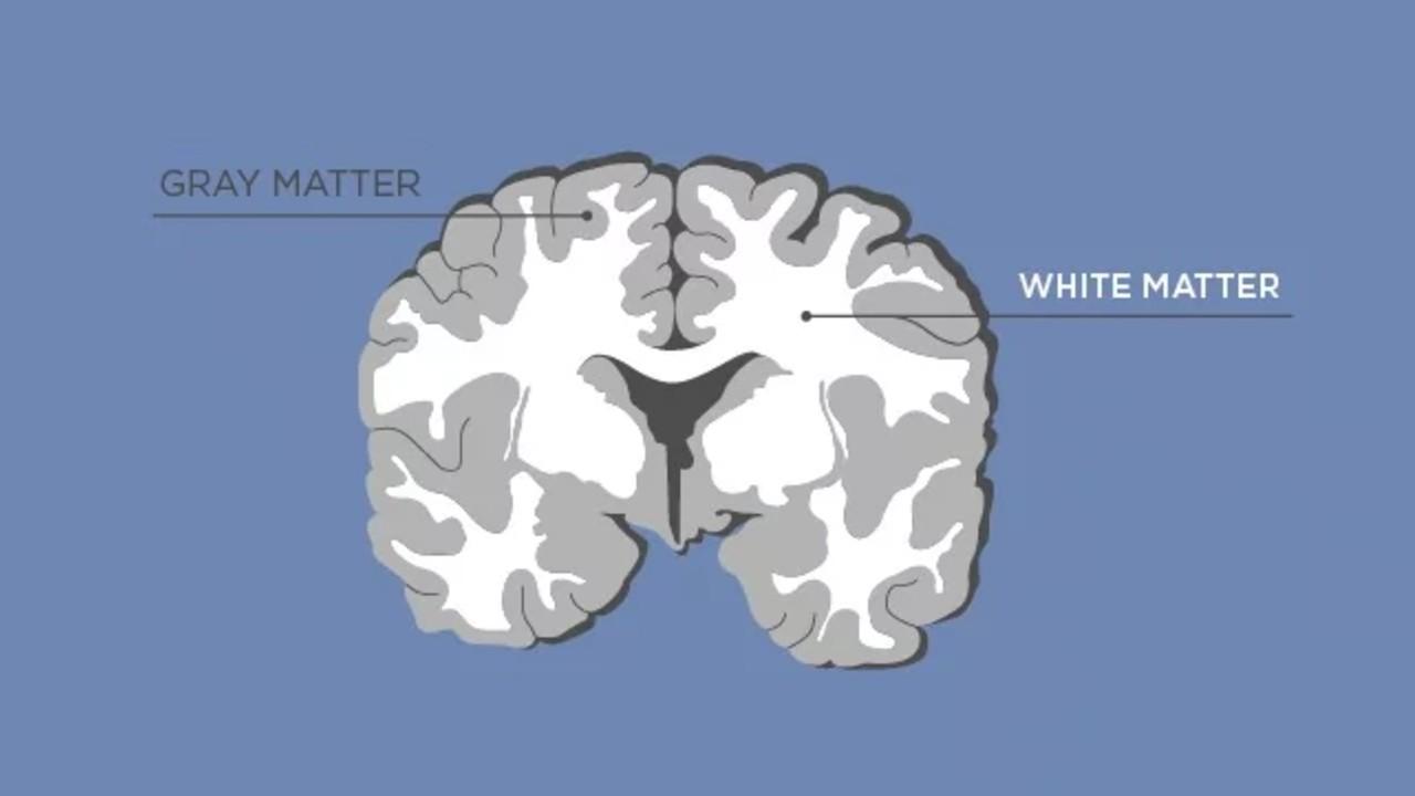 gri ve beyaz madde
