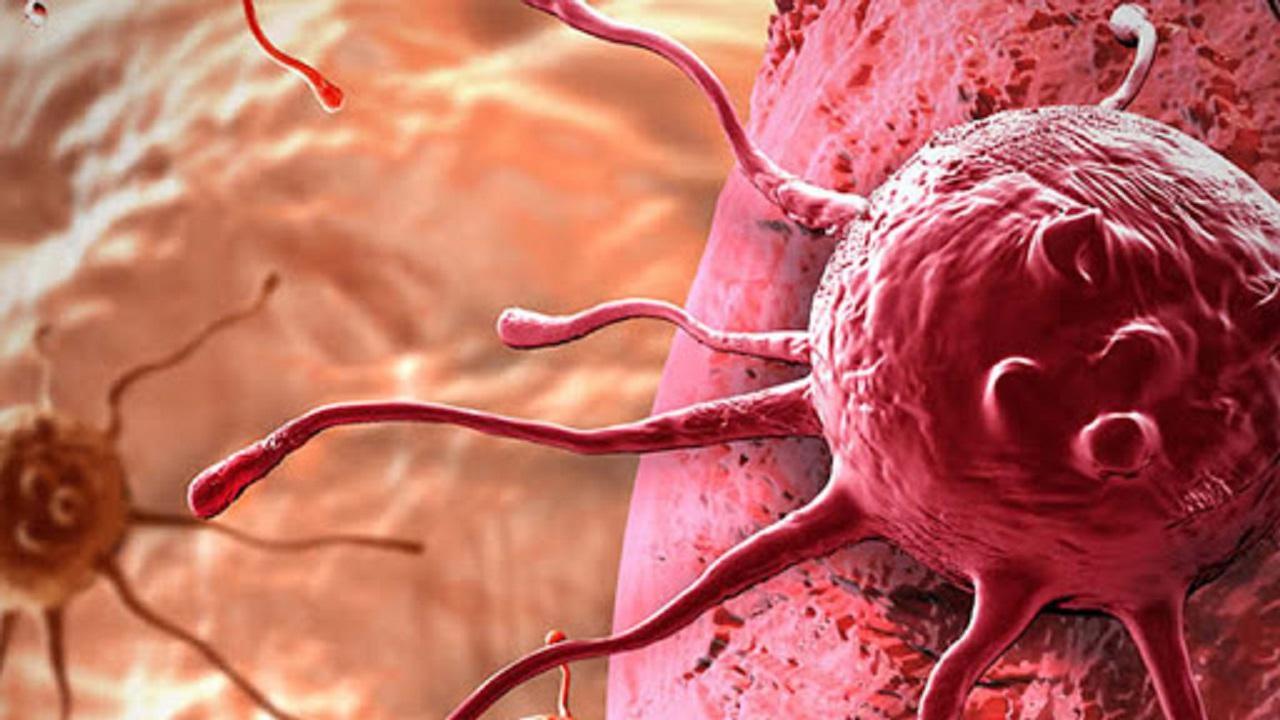 kanserli hücre