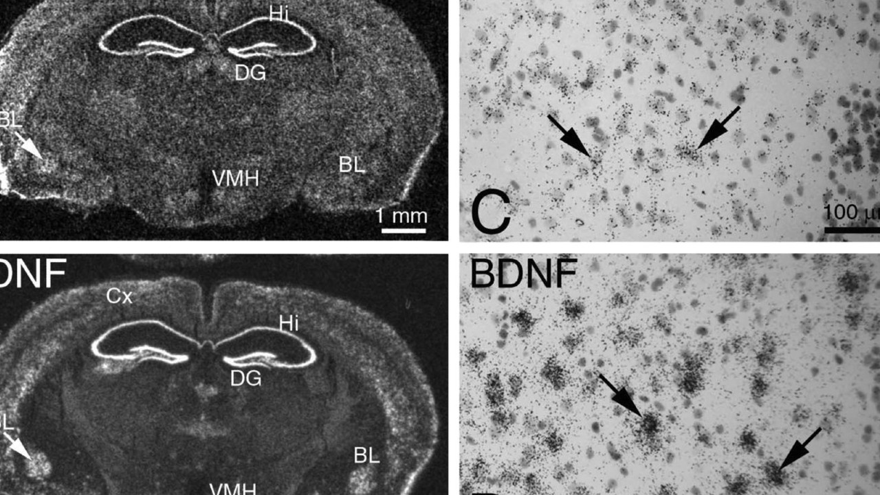 How to Increase the Secretory Protein BDNF in the Brain? 5