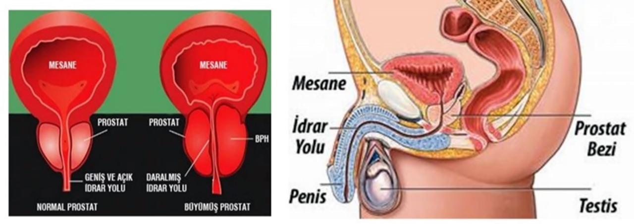 erkek prostat